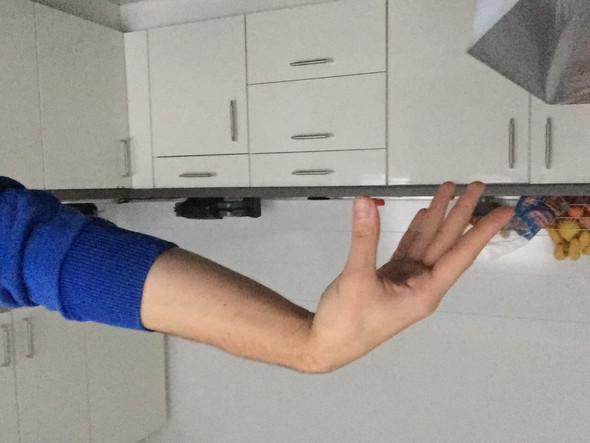 Nerven beschädigt/gequetscht Hand (gelähmt)?