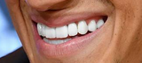 Neue Zähne Kostenlos
