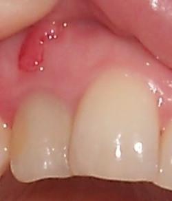 Zahn verfärbt sich grau nach wurzelbehandlung