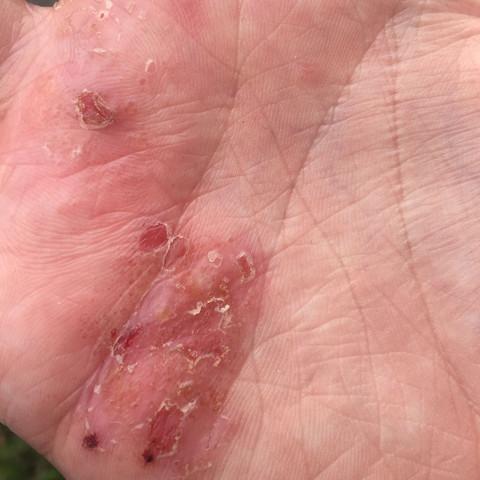 Meine Hand - (Haut, Hand, Neurodermitis)