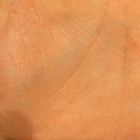 Händen den wenn in platzen adern Geplatzte Äderchen