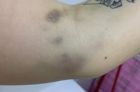 Blaue flecken nach blutabnahme