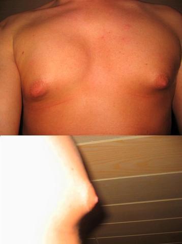 Der Mantel, wie die Brust zu vergrössern