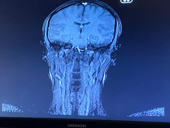 Normaler MRT-Befund des Gehirns? Woher könnten Konzentrationsschwierigkeiten kommen?