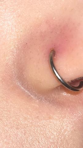 Hier sieht man die Flüssigkeit  - (Piercing, Entzündung, Nasenpiercing)
