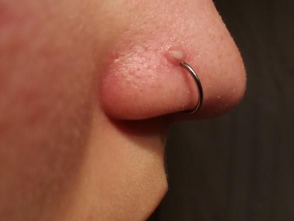 Eiterpickel; piercing Sitzt zu weit vorne? - (Gesundheit und Medizin, Piercing, Eiterpickel)