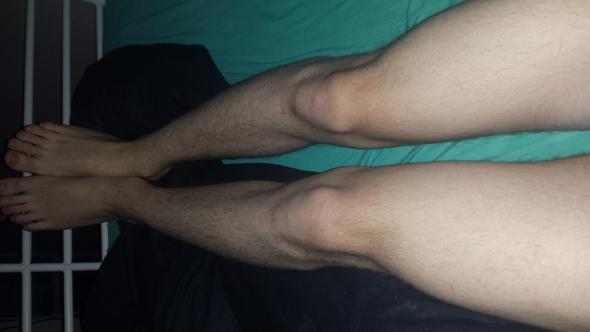 Beine - (Behandlung, o-beine)