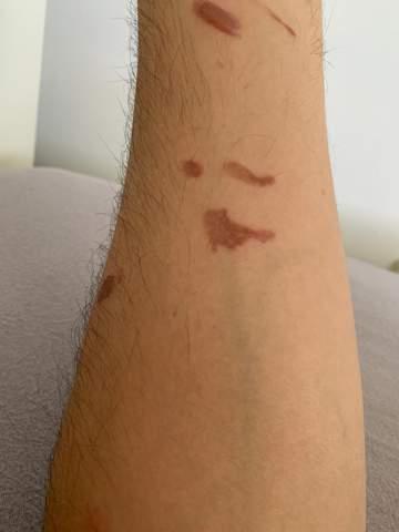 Ölspritzer auf Unterarm?