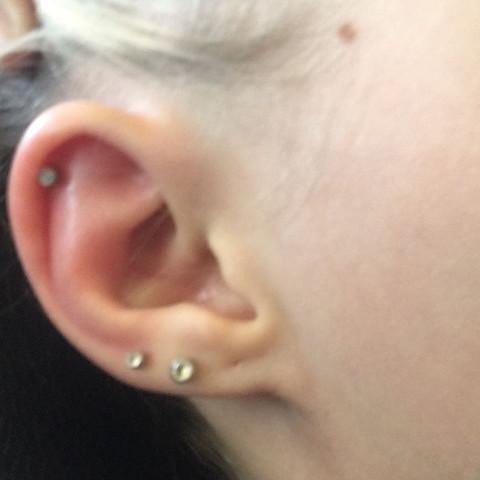 Das geschwolle Ohr  - (Schmerzen, Ohr)