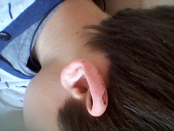 so sehen beide Ohren aus. - (Verbrennung, Brand)