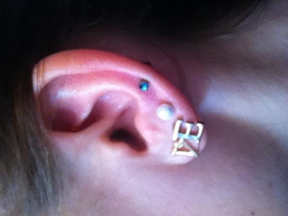 Das blaue ist gemeint ;) - (Piercing, Ohr, Entzündung)