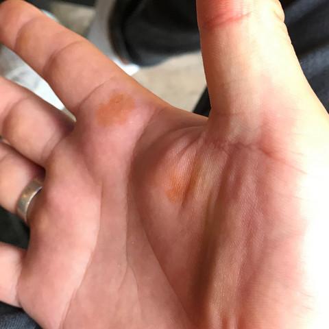 Blauer fleck handfläche