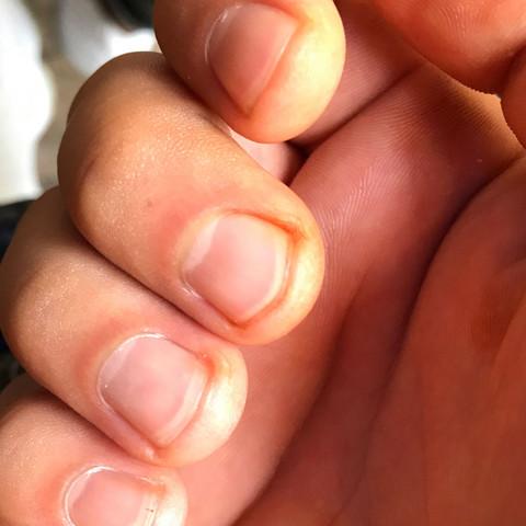 Orange Gelbe Flecken auf der Innenhand und Fingernagel