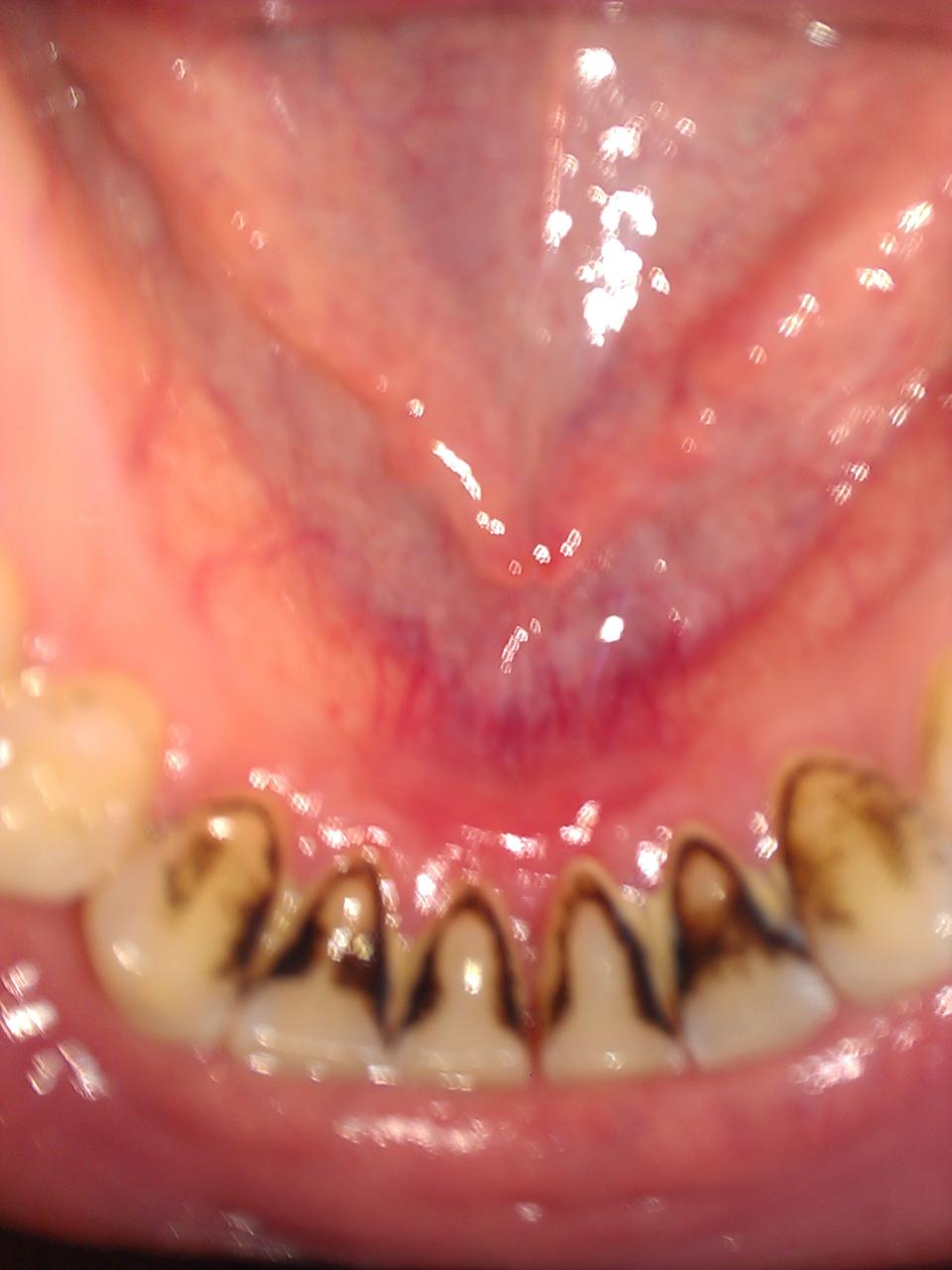 Schwarze Stellen Am Zahn Selber Entfernen