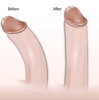 Nach unten gebogener penis