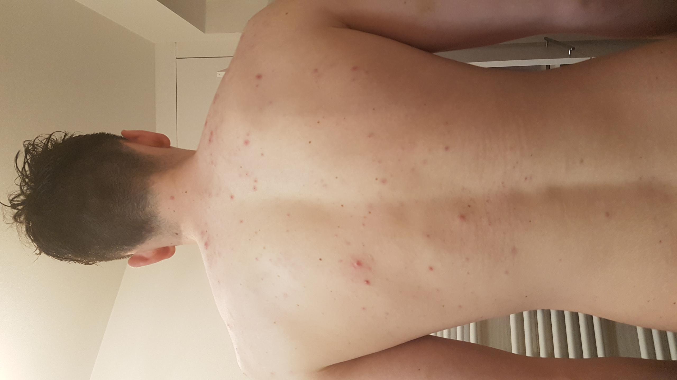Pickel am Rücken und vorderen Brust loswerden - wie? (Haut