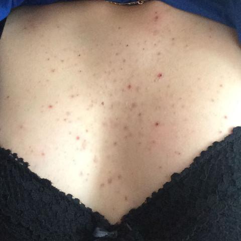 pickelchen auf der brust
