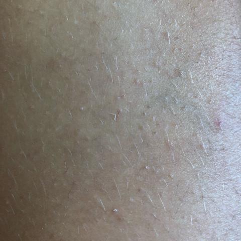 Ps bin eine Frau - (Pickel, Beine, rot)
