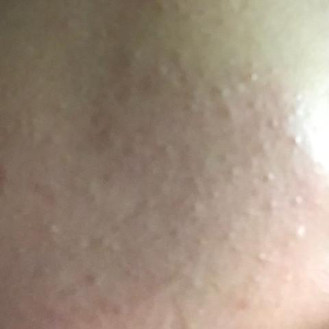Bitte schaut euch an wie extrem das ist, könnte das akne sein? - (Beauty, Pickel, Torte)
