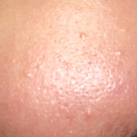 stirn - (Menschen, Leben, Haut)