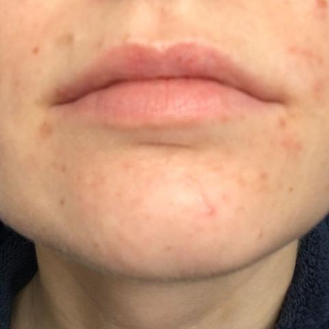 Rechts von meinem Mund hab ich auch Rote Stellen, die ich nicht zuordnen kann - (Haut, Pickel, Mitesser)