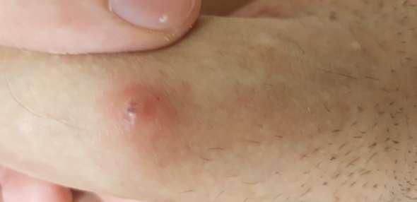 Pickel regelmäßig am linken Penisschaft? (Gesundheit und