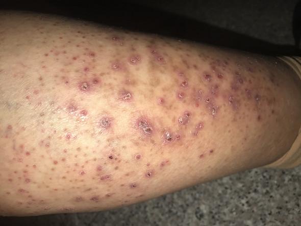 Beinen po pickel an und Hautprobleme bei