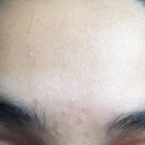 Haare entfernen pickel