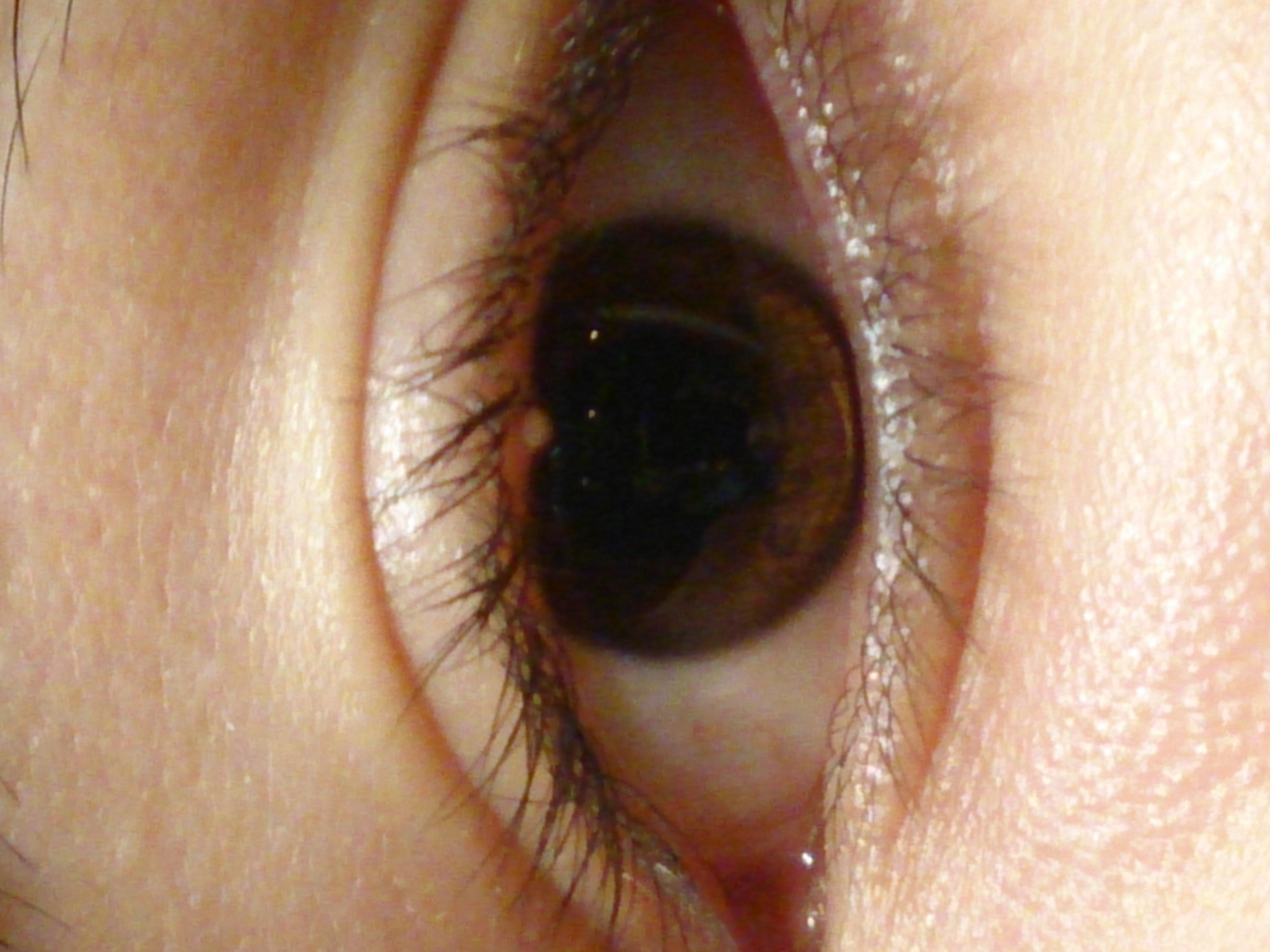 Pickelartiges Ding Am Auge Augen Augenlid