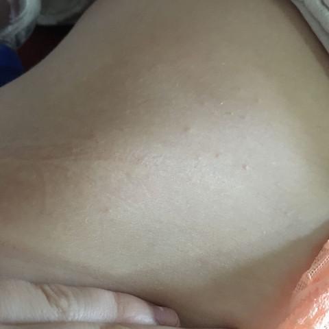 Bild 2 - (Haut, Pickel, Ausschlag)