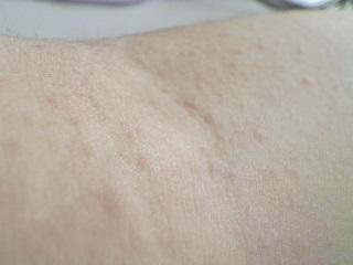 Arm - (Pickel, rot, Pickelchen)