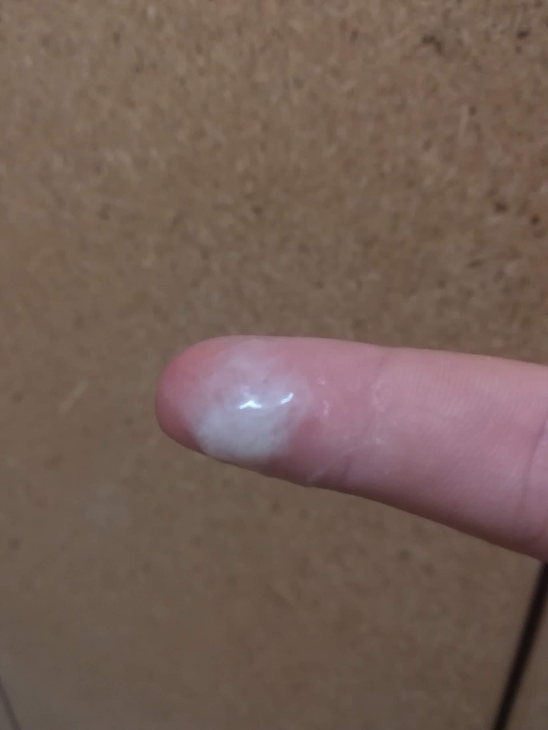 Eisprung schleimklumpen nach Zervixschleim