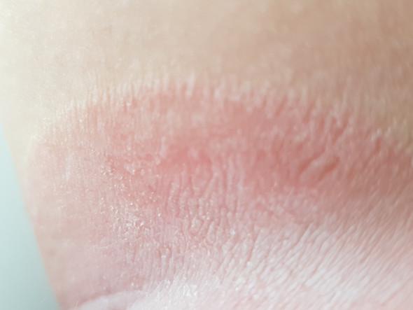 Pilz oberschenkel innenseite