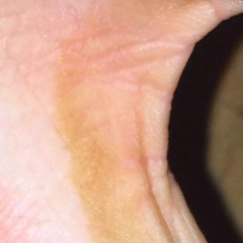 Zwischen Ringfinger und dem kleinen Finger  - (Gesundheit, Gesundheit und Medizin, Körper)