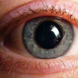 Plötzlich große pupillen? (groß, Pupille)