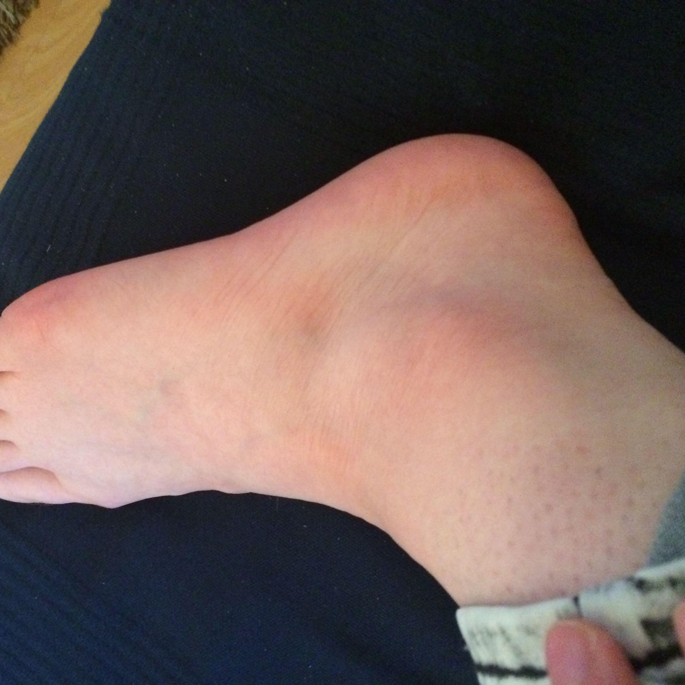 Plötzlich Wasser in den Beinen? (Medizin, Beine, Luft)