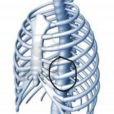 Der Bruch der Wirbelsäule l1 die Behandlung