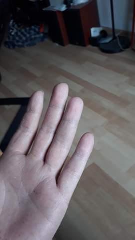 Plötzlicher Schmerz mit Bluterguss im Finger?
