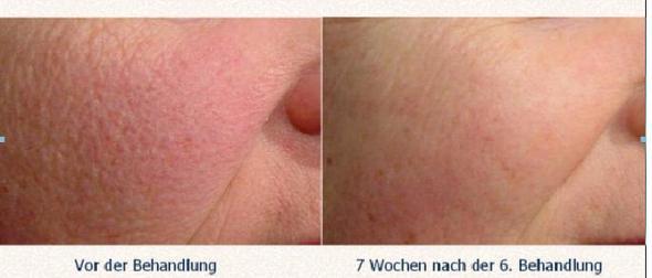 laser gegen große poren