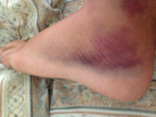 Fuß umgeknickt schmerzen nicht geschwollen