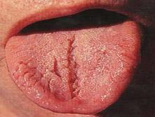 Zunge Bilder
