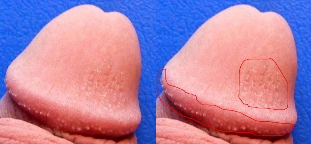 Hornzipfelchen selbst entfernen