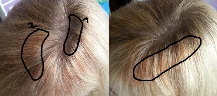 Haare Färben Läuse