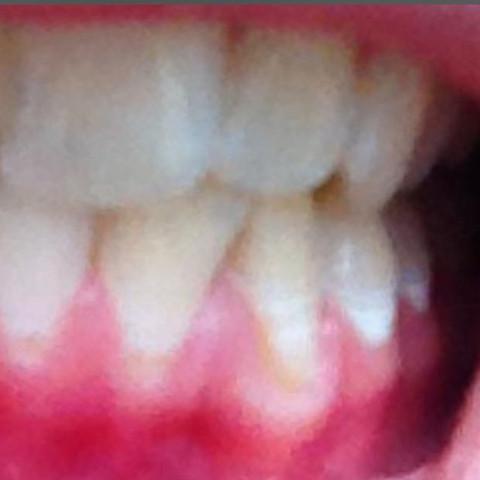 Bild (Nicht von mir) - (Zähne, Hygiene, Zahnfleisch)