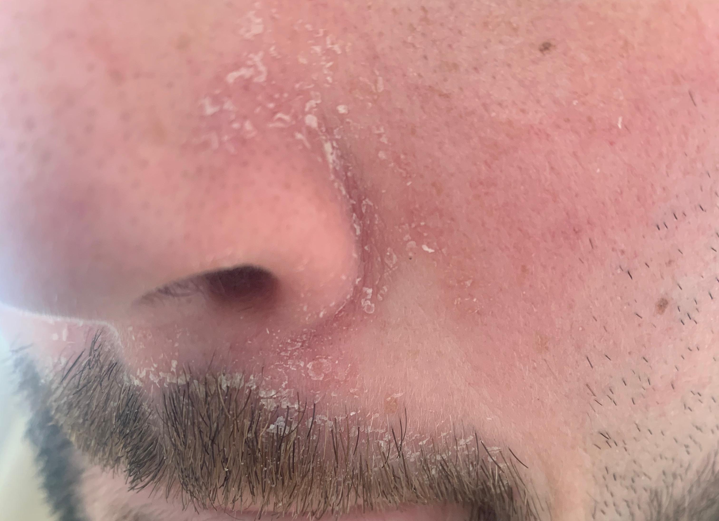 Probleme mit der Haut im Gesicht. Was kann das sein und