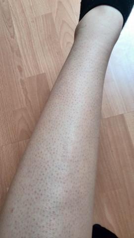 Mein Bein, und nein ich friere nicht es ist deffinitiev keine gänsehaut ;) - (Beine, Hautkrankheit, rote-punkte)