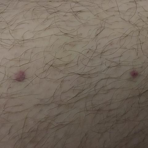 Bein.  - (Punkte, Oberschenkel, Thrombose)