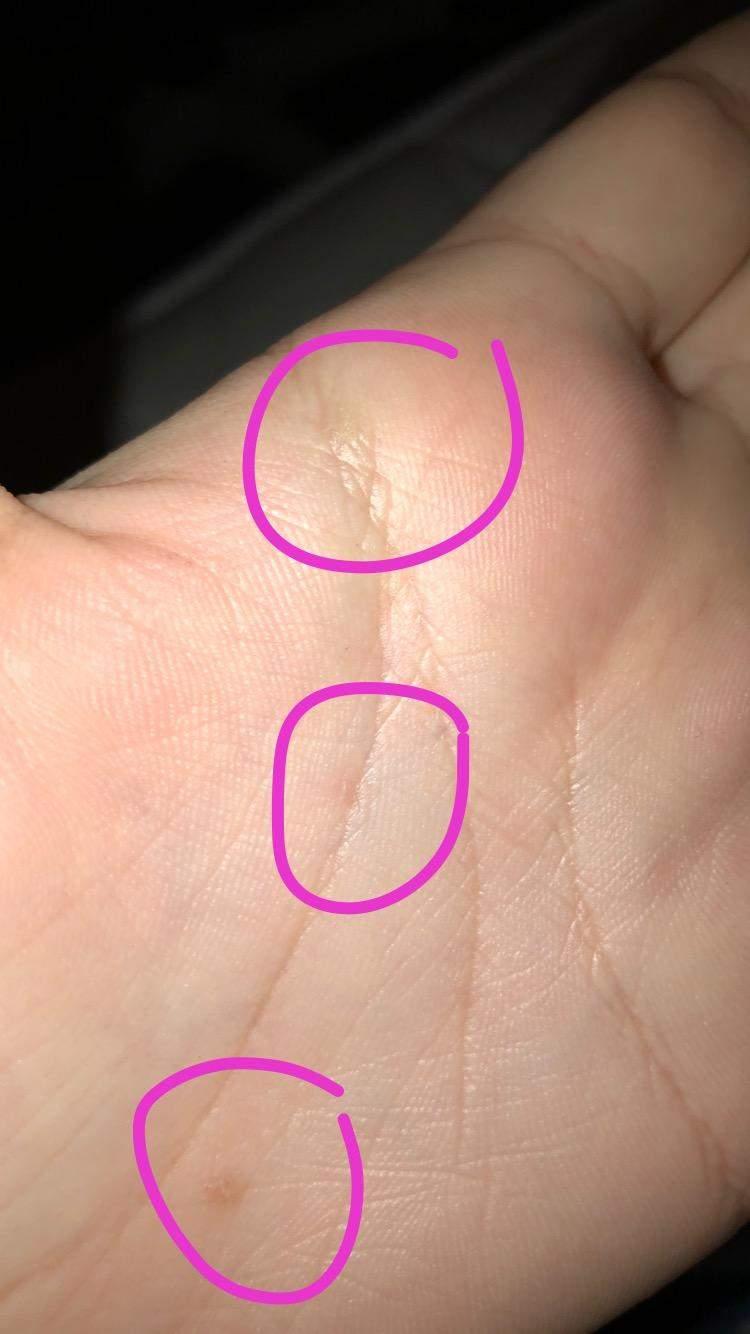 Ringfinger juckt bedeutung linker Missempfindungen (Parästhesien)
