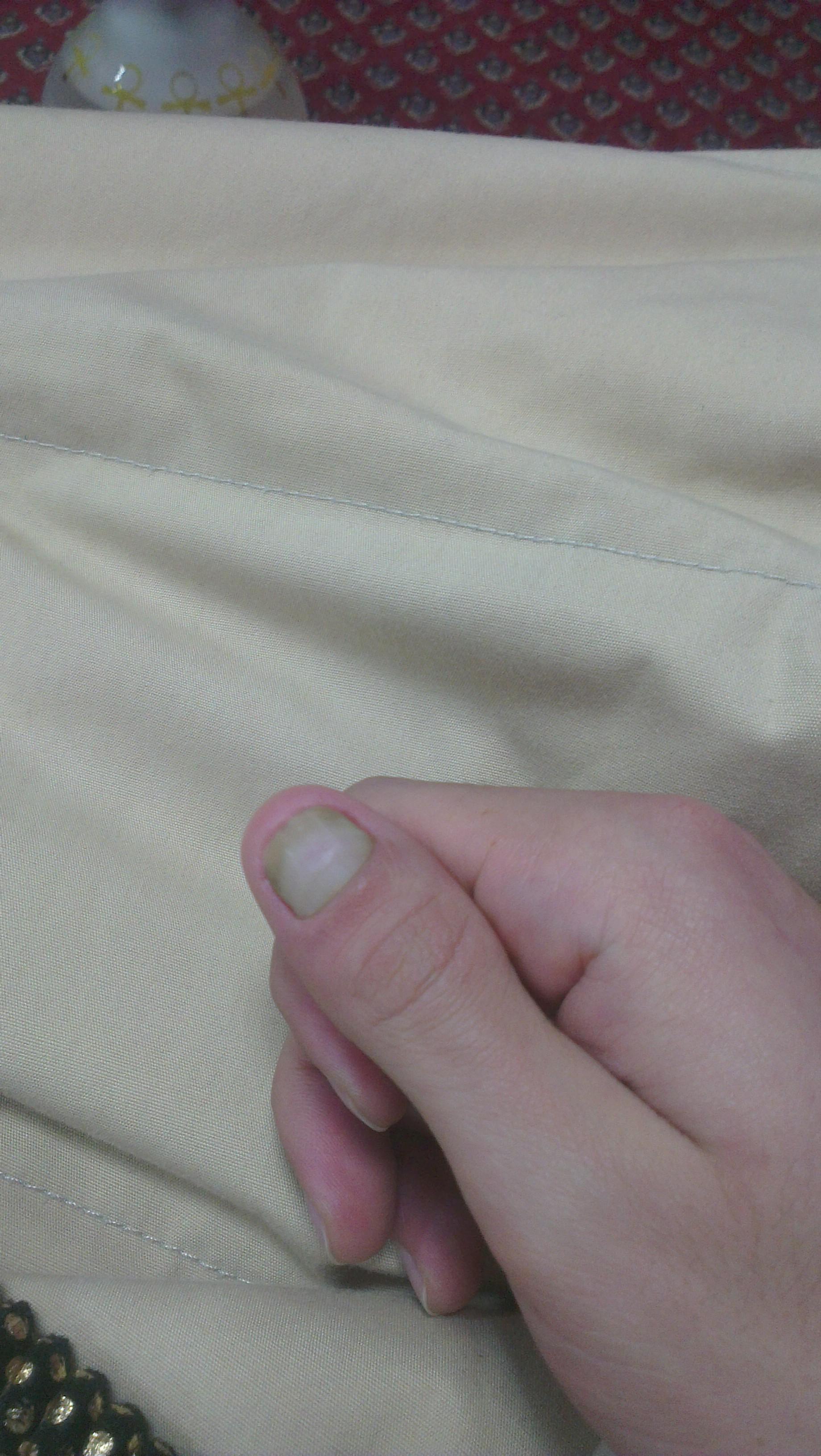 Quetschung an der Nagelwurzel Heilung (Gesundheit, Medizin, Medikamente)