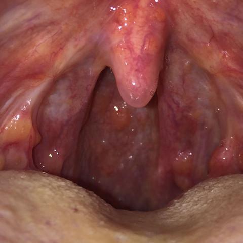Teil 2 - (Rachenentzündung, seitenstrang)